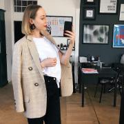 Иглоукалывание для похудения, Анна, 31 год