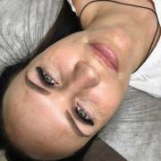 Ретиноевый пилинг, Диана, 24 года