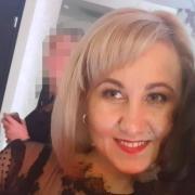 Коррекция морщин диспортом в Набережных Челнах, Лилия, 36 лет