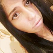 Озонотерапия, Сюзанна, 32 года